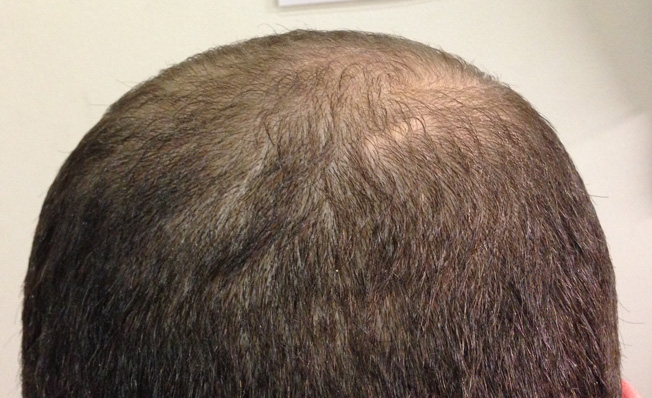 This photo was taken of the same model, only 24 hours later. However, it was sent to Mr Cohen 30 days later, so that he would think that his client was sharing photos after using IHRB's obscenely priced, illegally sold topical solution (was was nothing more than regular Minoxidil).